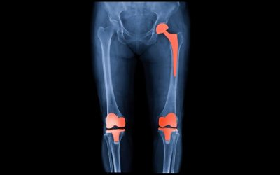 Prehabilitation and Rehabilitation for Knee and Hip Replacements